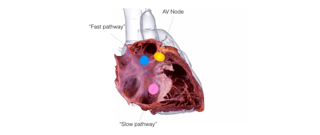 Svt Ep Study Ablation One Heart Cardiology