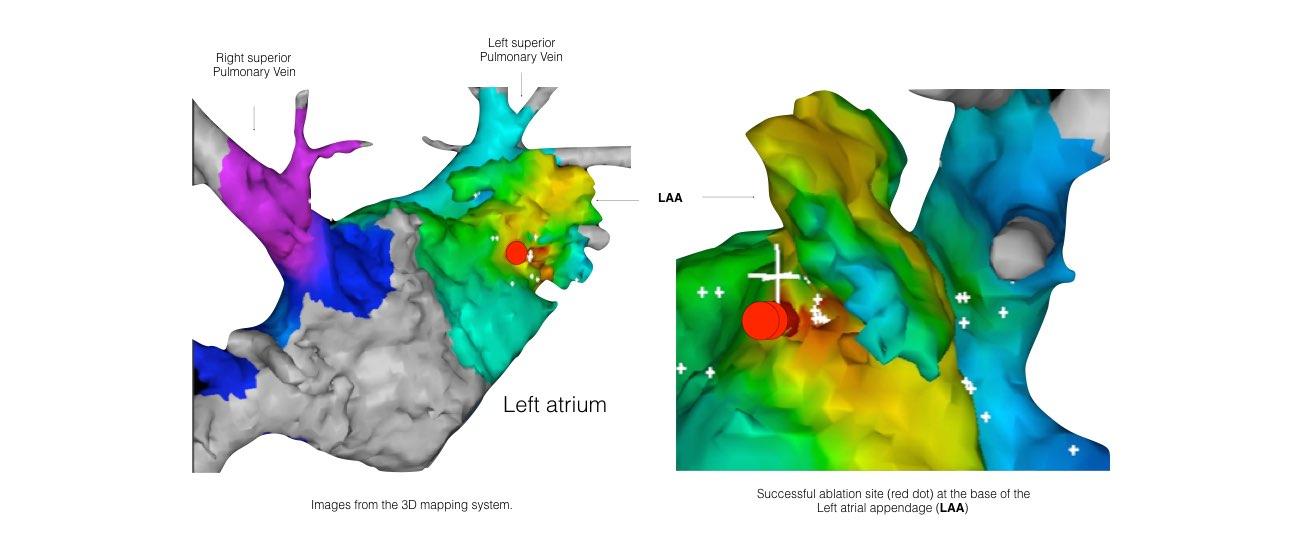 Atrial Tachycardia slide 5