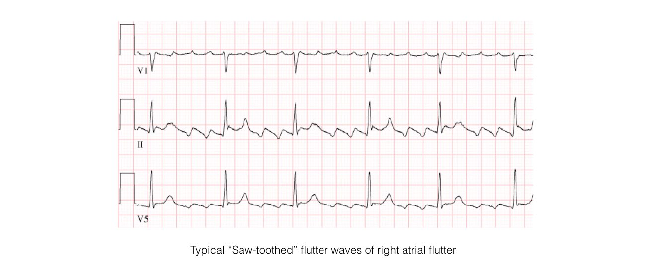 abnormal heart rhythm slide 2