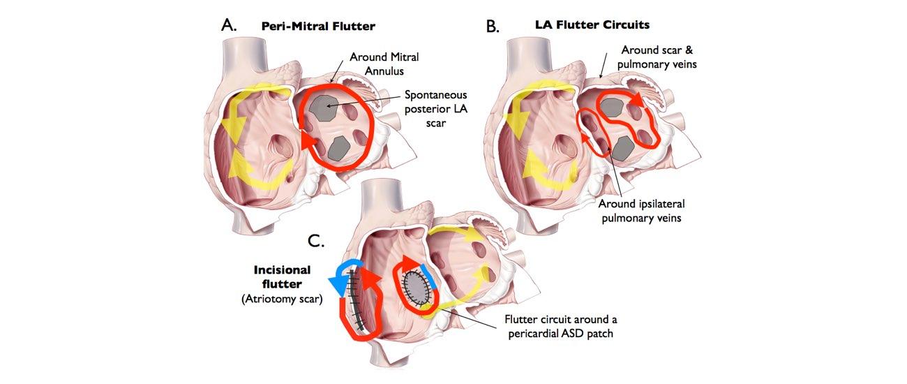 abnormal heart rhythm slide 3