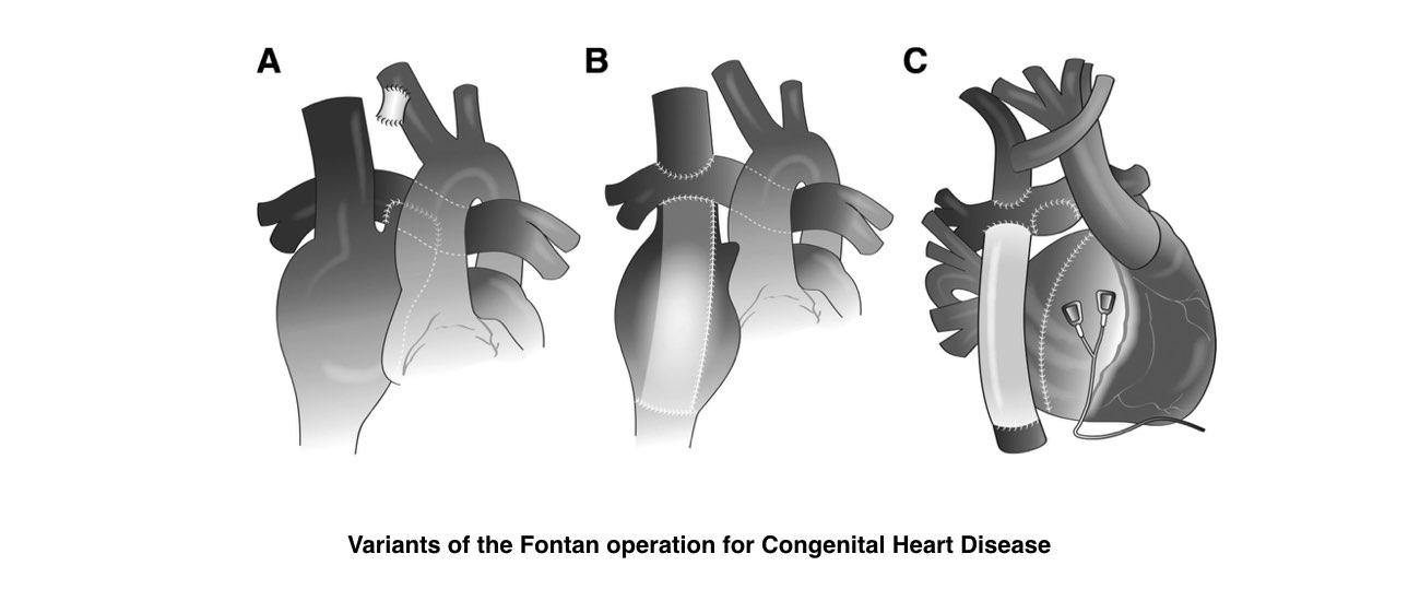 abnormal heart rhythm slide 4
