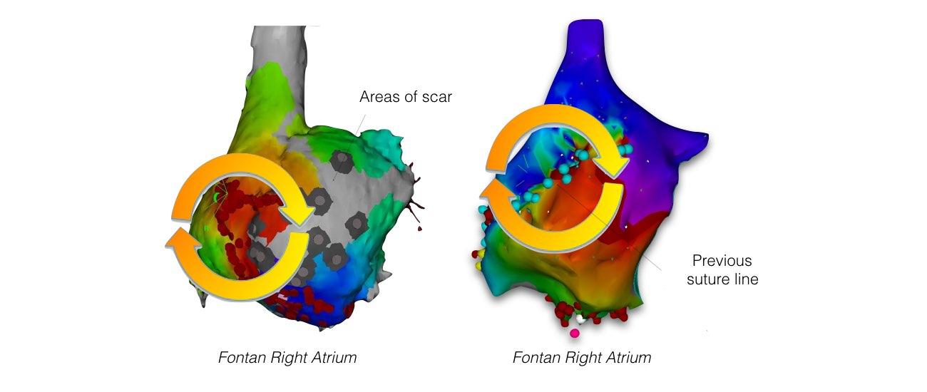 abnormal heart rhythm slide 5