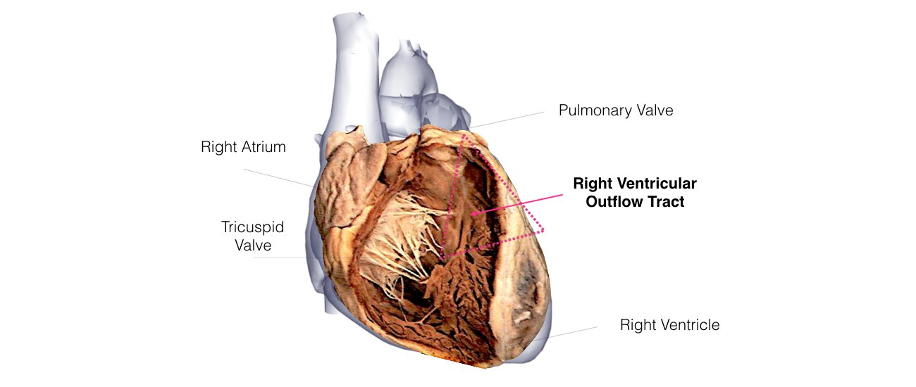 VT in Normal Hearts Slide 2