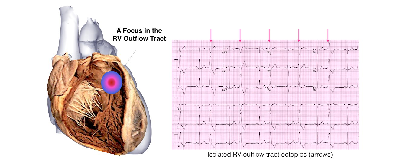 VT in Normal Hearts Slide 4