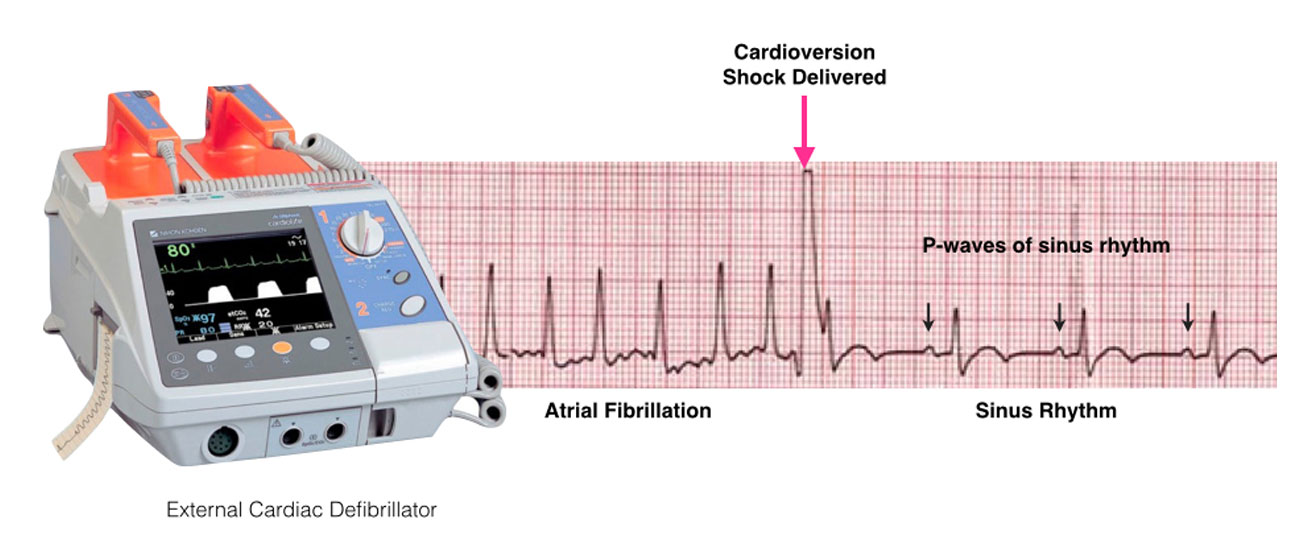 cardioversion diagram
