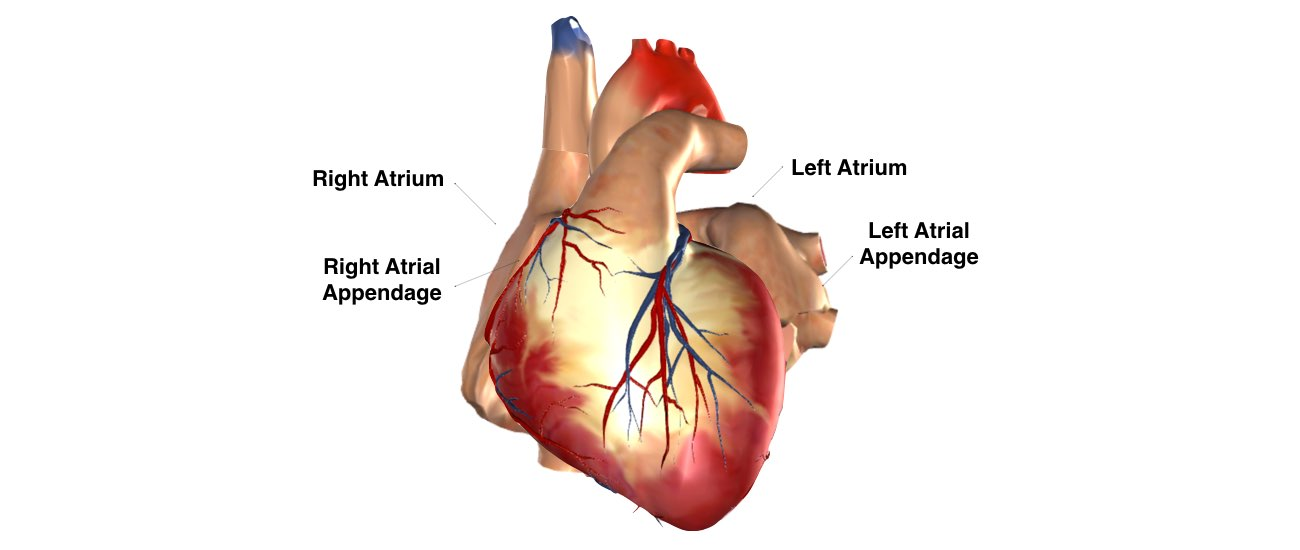 Atrial Tachycardia slide 1