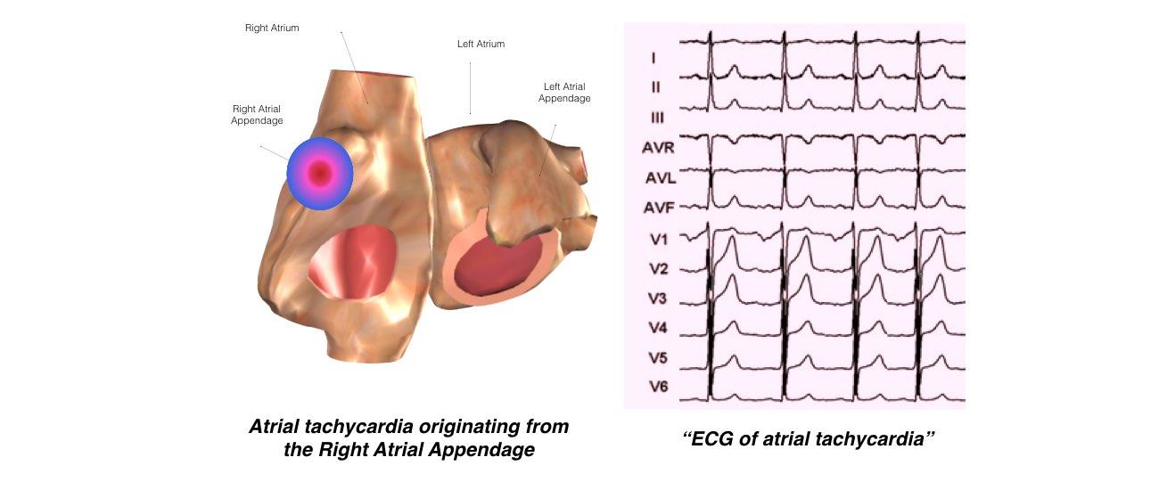 Atrial Tachycardia slide 2