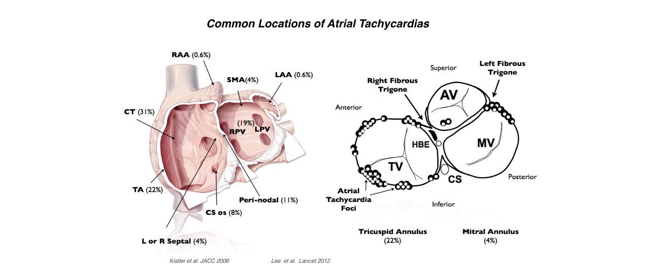 Atrial Tachycardia slide 3