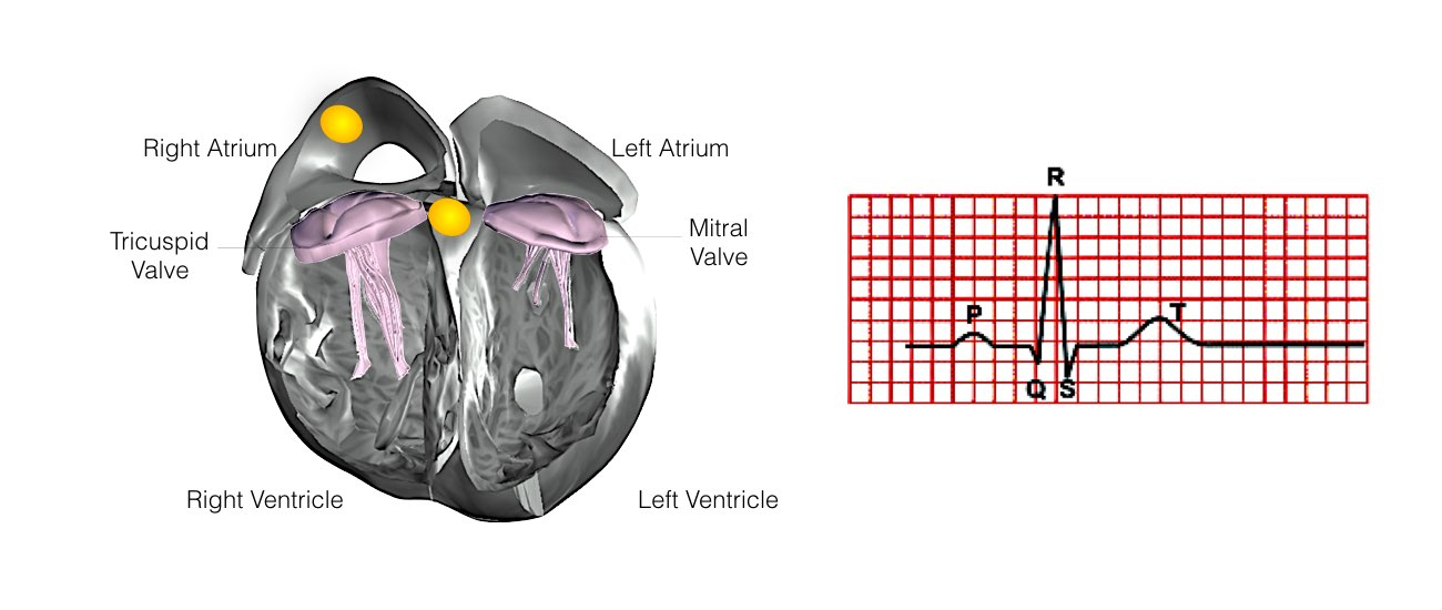 Normal Heart Function Example 5