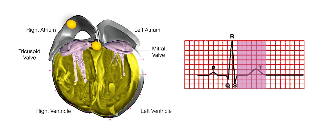 Pacemaker Implantation - One Heart Cardiology