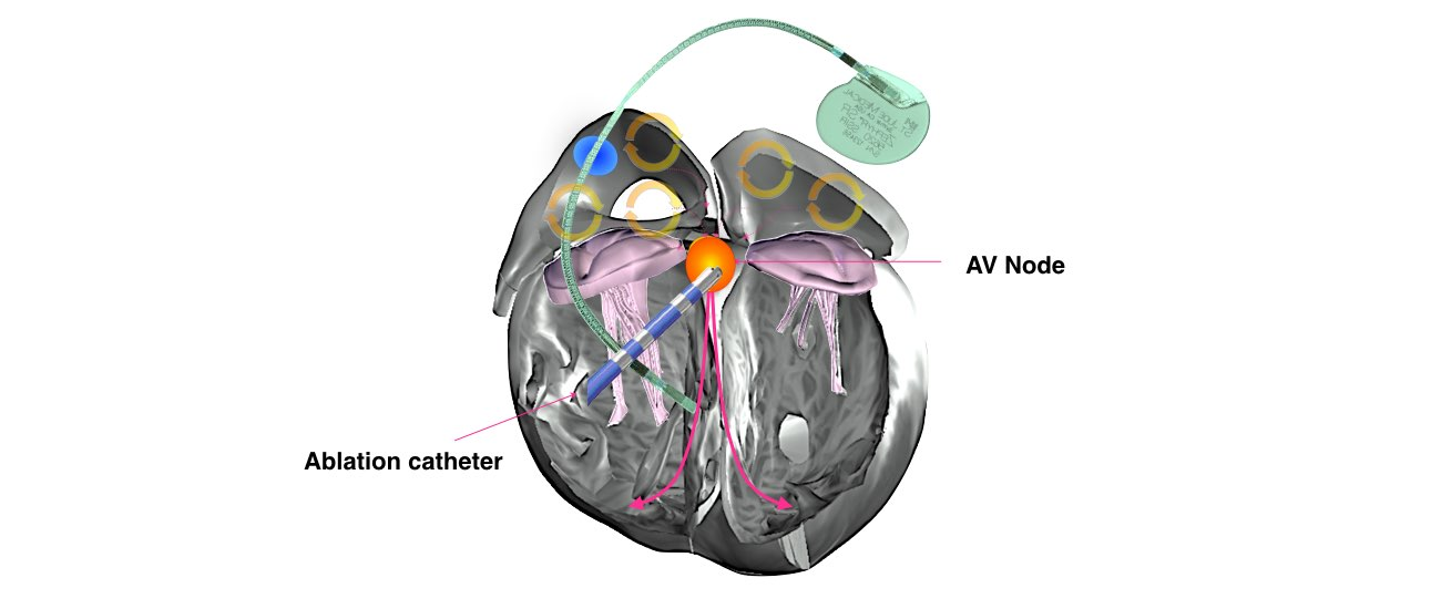 av ablation procedure info 2