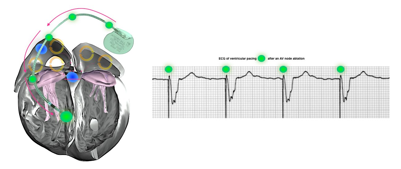 av ablation procedure info 4