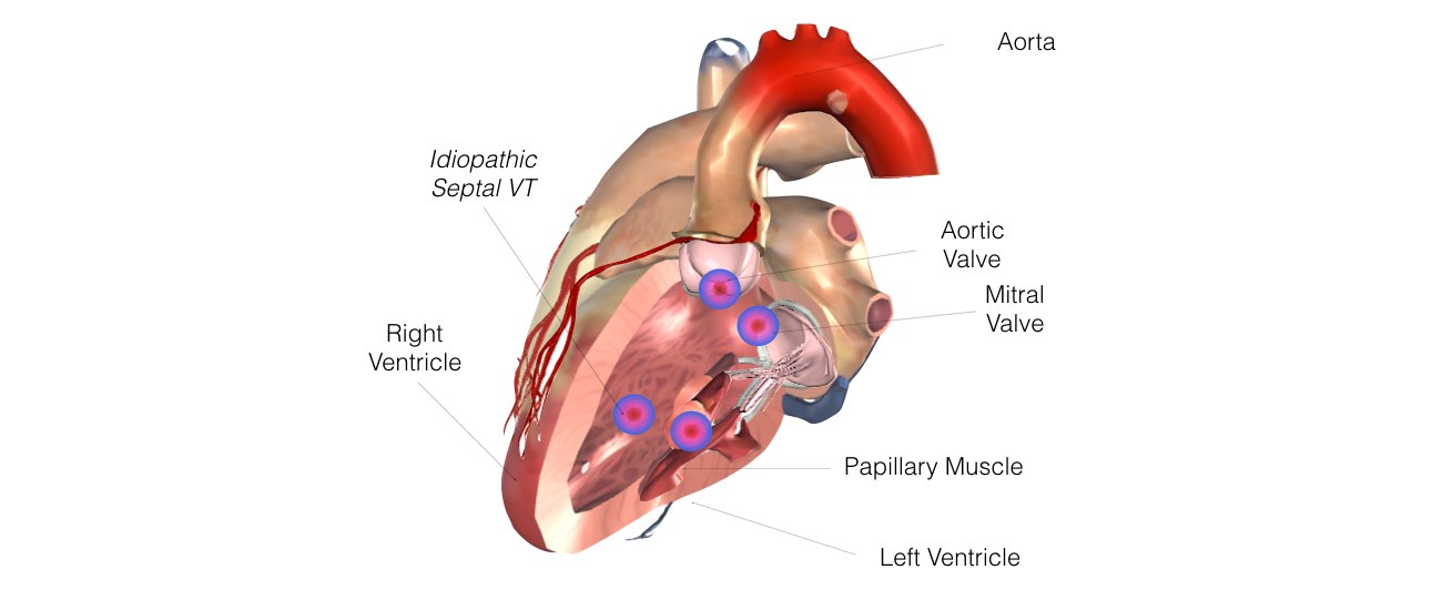 VT in Normal Hearts Slide 5