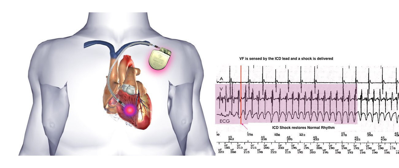 Implantable Cardioverter Defibrillator (ICD) - One Heart