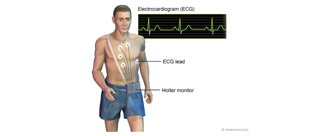A holter Monitor Setup